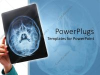 Powerpoint Template: Hand Holding Up X Ray Scan Of Human Skull For Pertaining To Radiology Powerpoint Template